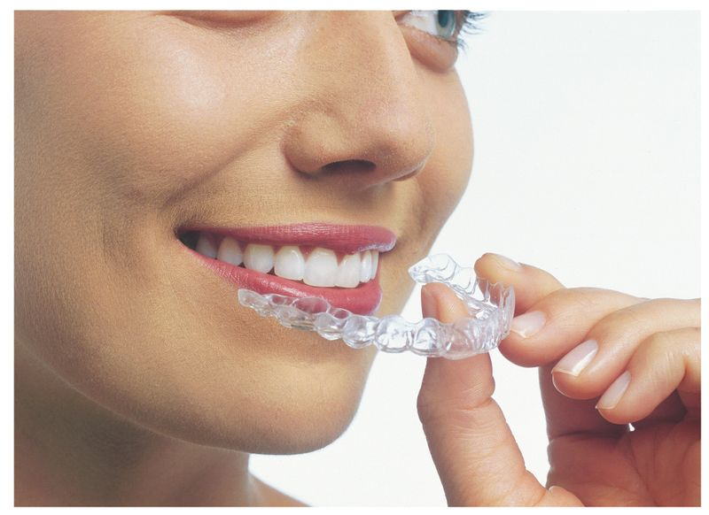 Invisalign, teeth straightening, clear braces